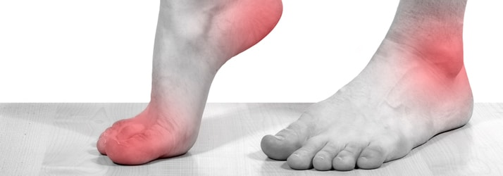red marking pain in feet
